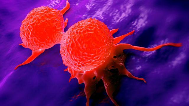 que es el cancer inflamatorio de seno