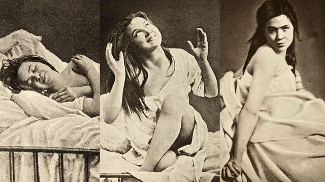 """Tres imágenes de """"Iconographie Photographique de la Salpetriere"""""""