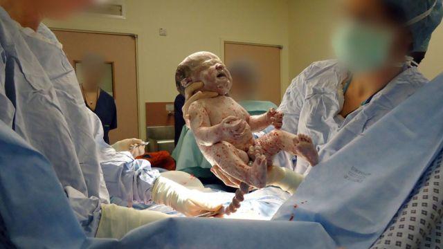 Un bebé