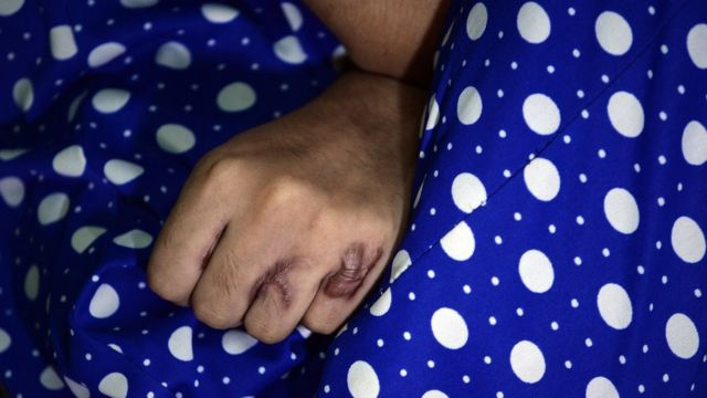 India woman attacked with acid for fifth time