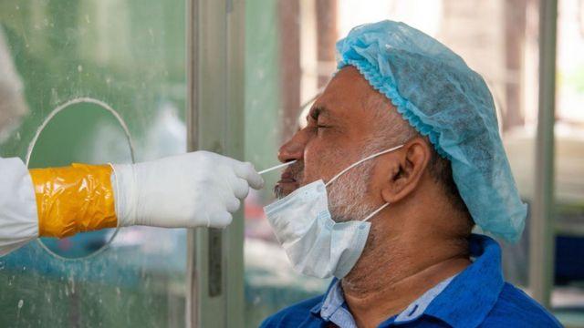 Raspado nasal para aplicar una prueba molecular de covid-19 a un paciente.