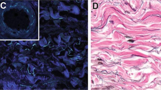 As partes em azul escuro são feixes de colágeno fibrilar. Na imagem à direita, as fibras de elastina são as manchas pretas e as estruturas de colágeno em rosa.