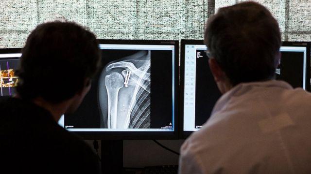 Médicos olhando radiografia
