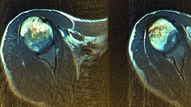 Este es un escáner del hombro de un hombre de 50 años que sufre de algodistrofia.