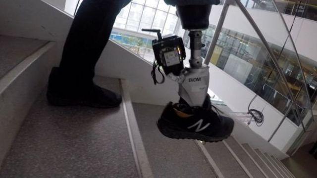 ขาเทียมไบโอนิกใช้เซ็นเซอร์แบบที่ใช้ในรถยนต์ขับเคลื่อนอัตโนมัติขณะก้าวลงบันได