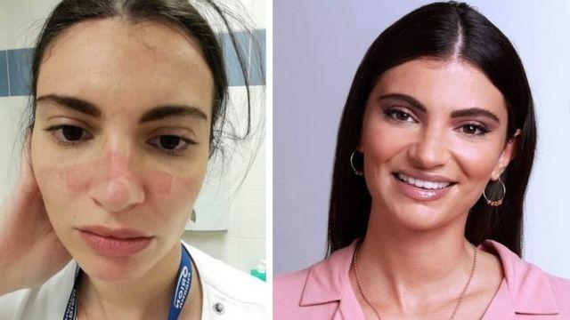 الممرضة مارتينا قبل وبعد أزمة كورونا في إيطاليا
