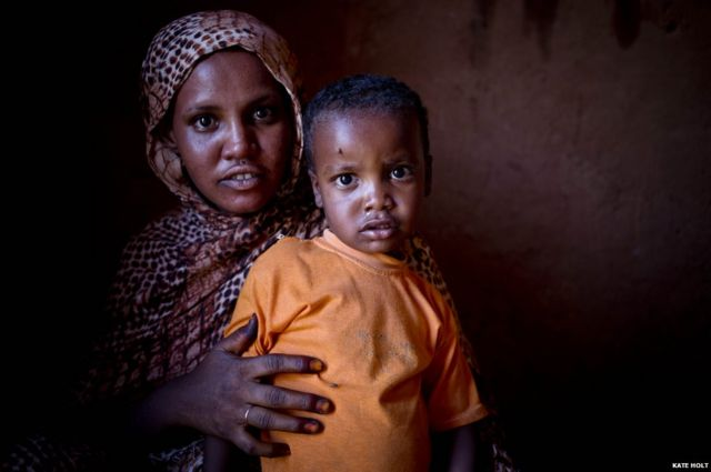 In pictures: Combating trachoma in Sudan
