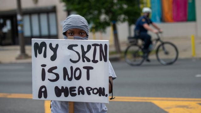 """""""My skin is not a weapon"""" says the banner of this protester."""
