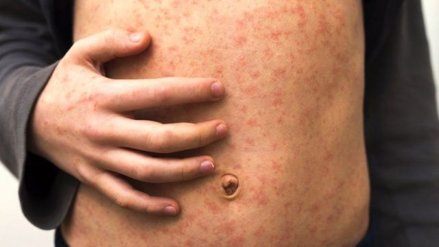 A person with a rash on their abdomen