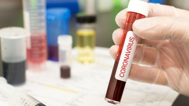 Una mano sujeta una probeta de laboratorio con sangre