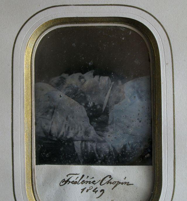 Foto de Chopin en su lecho de muerte