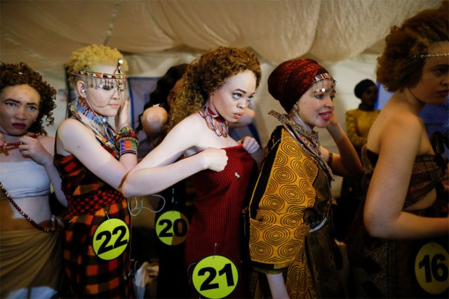 Kenya's Mr and Miss Albinism beauty pageant