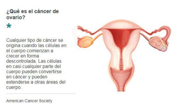 Explicación sobre el origen del cáncer de ovarios