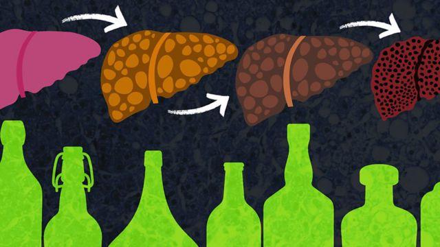 Gráfico: hígado dañado por el alcohol