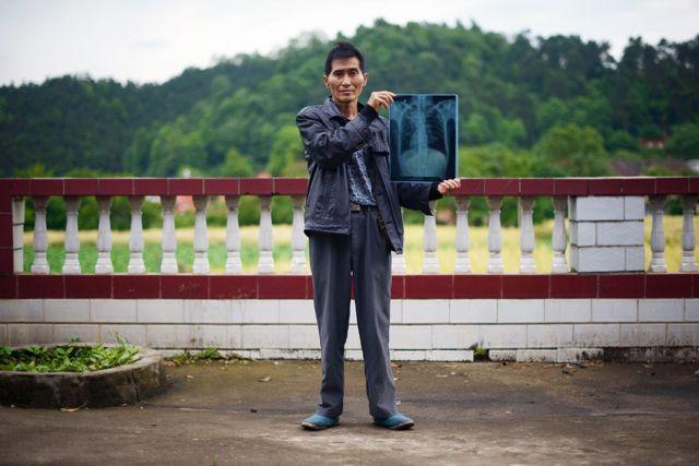 一名湖南的塵肺病患者。