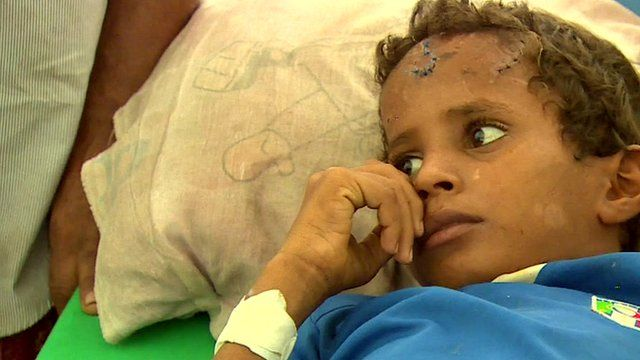 Close up of Yemeni boy, Omar, who is in constant pain after being injured in a landmine blast