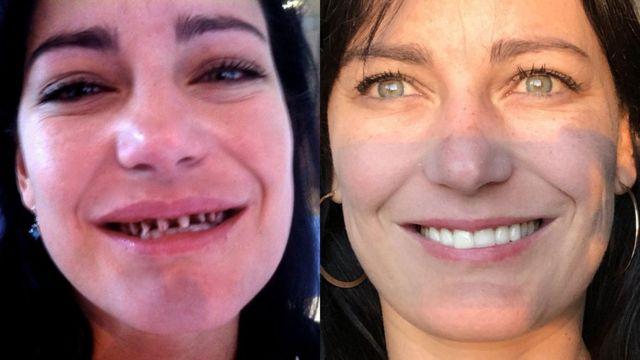 Antes e depois de Natalia
