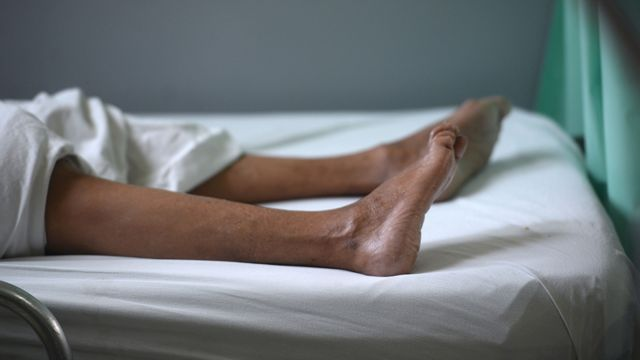The legs of a patient suffering from Guillain-Barré syndrome in Brazil
