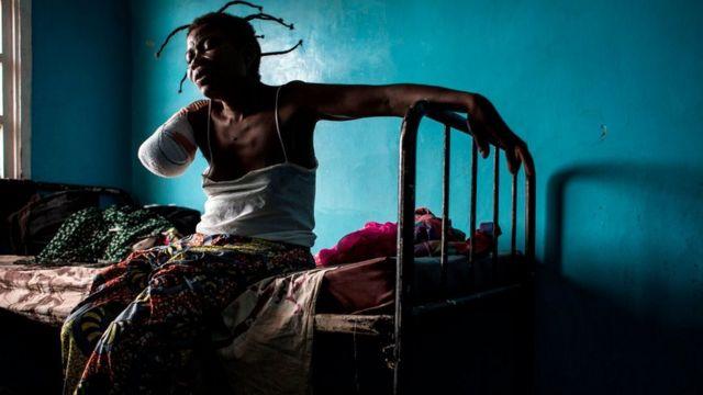 Una mujer de RDC con un brazo amputado tras ser herida con un disparo.