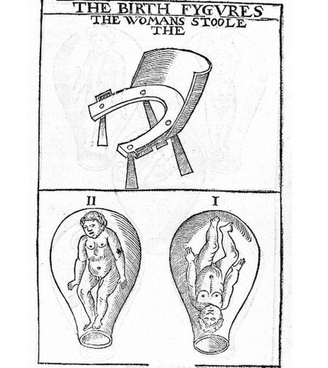 Ilustración del siglo XVI de las sillas para parir (arriba) y de la posición del bebé.