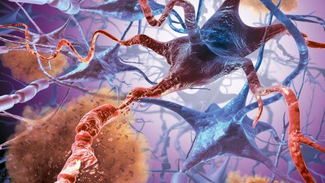 Representação artística da quebra de conexão entre células cerebrais como acontece em pacientes com Alzheimer.