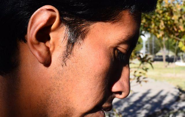 Rogeiro pokazuje povredu na uhu
