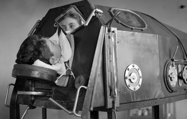 A boy lying inside an iron lung