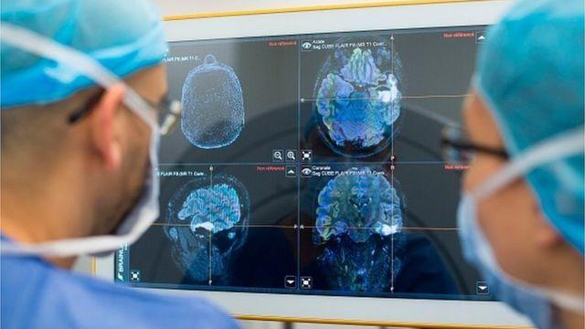 нейрохірурги
