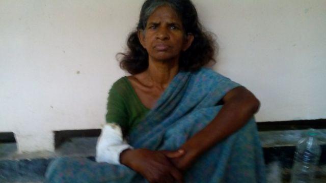 रांची के अस्पताल में भर्ती घायल महिला
