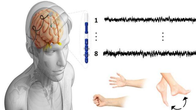 صورة لتسجيل الإشارات العصبية