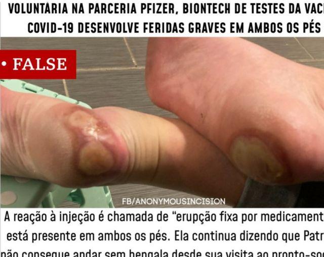 Postagem em pés feita em português