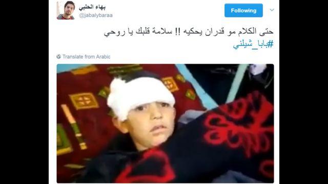صورة للطفل اثناء تلقيه العلاج