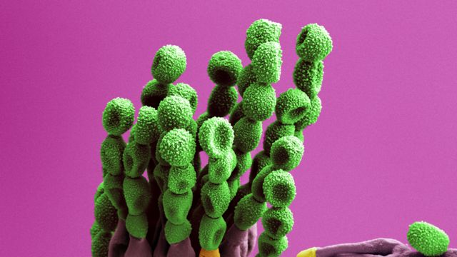 Pennicillium en una imagen obtenida con un microscopio de electrones