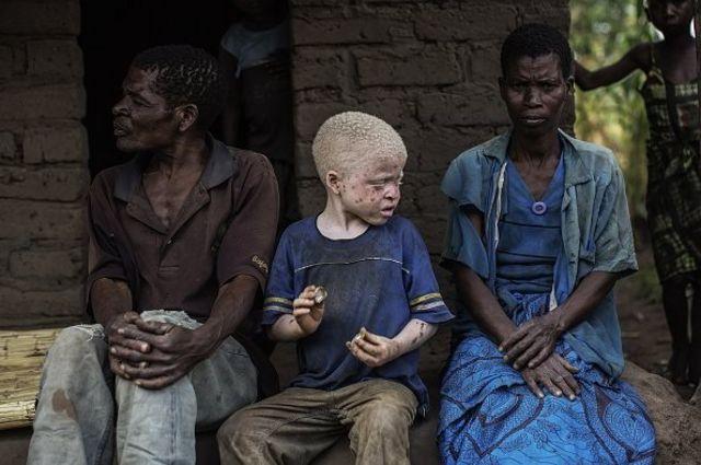 ผิวเผือก, คนเผือก, ภาวะผิวเผือก, อัลบิโน, มาลาวี