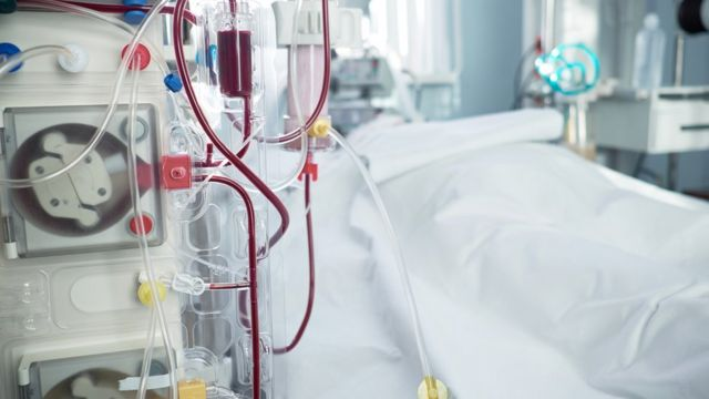 Máquina de hemodiálise ao lado de maca em sala de hospital