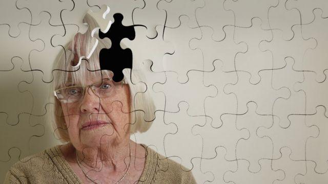 ilustración - alzhéimer