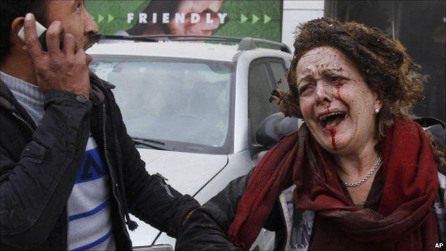 Kabul blast survivor
