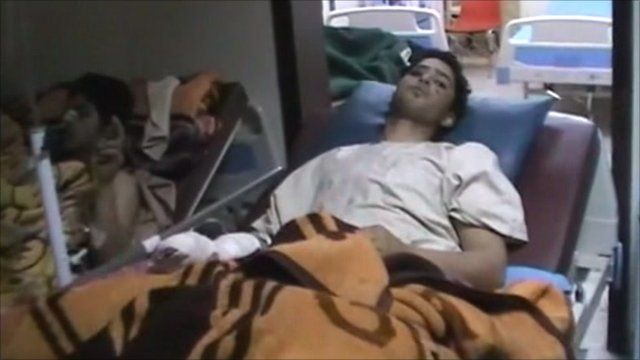Injured man in a hospital bed