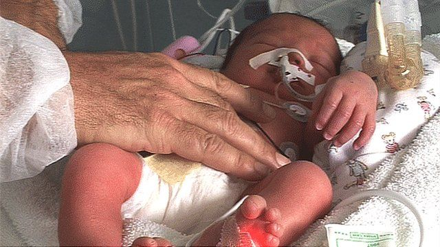 A premature baby receives treatment in the high-tech neonatology ward of the Centre Hospitalier de Villefrance Sur Saone