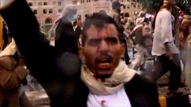 Injured protester in Yemen