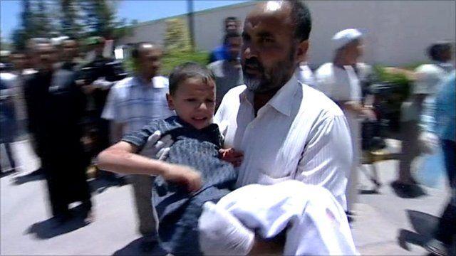 Injured boy in Misrata