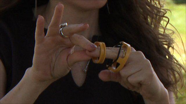 Prepex circumcision device