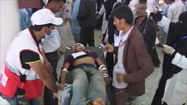 Man treated in street in Yemen