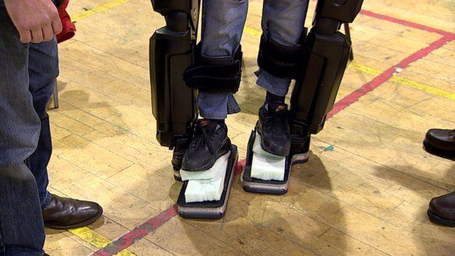 Woman wearing bionic legs
