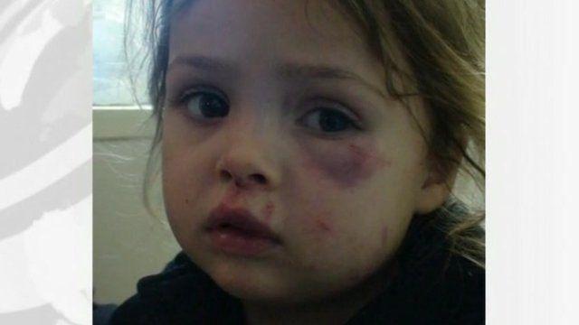 Katie Ann Guttridge after the incident