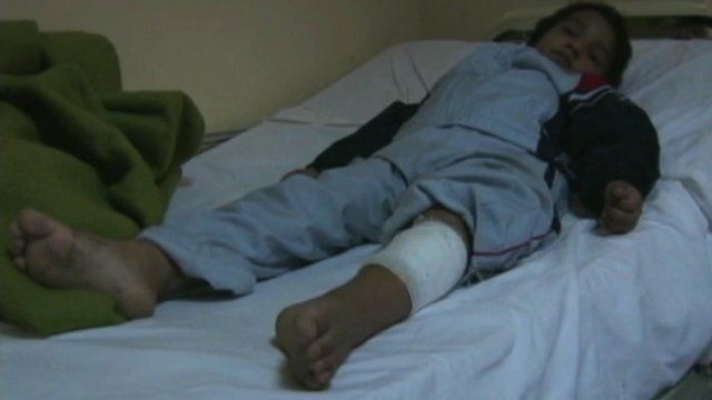 Injured Syrian girl