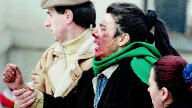 An injured woman following a mortar attack on an open air market in Sarajevo