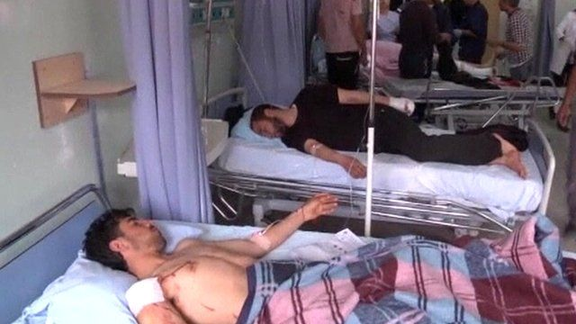 Wounded men in hospital