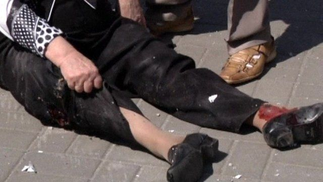 Woman with injuries to her legs