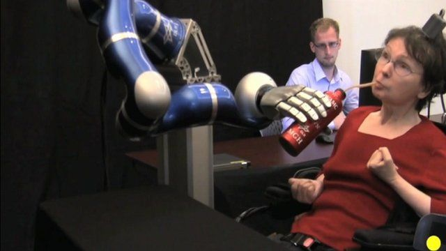 Robotic arm controlled by patient's brain